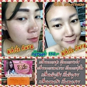 White Aura Miracle Carrot Soap
